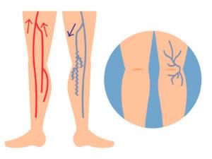 足がだるい、浮腫む(むくむ)その原因は?下肢静脈瘤
